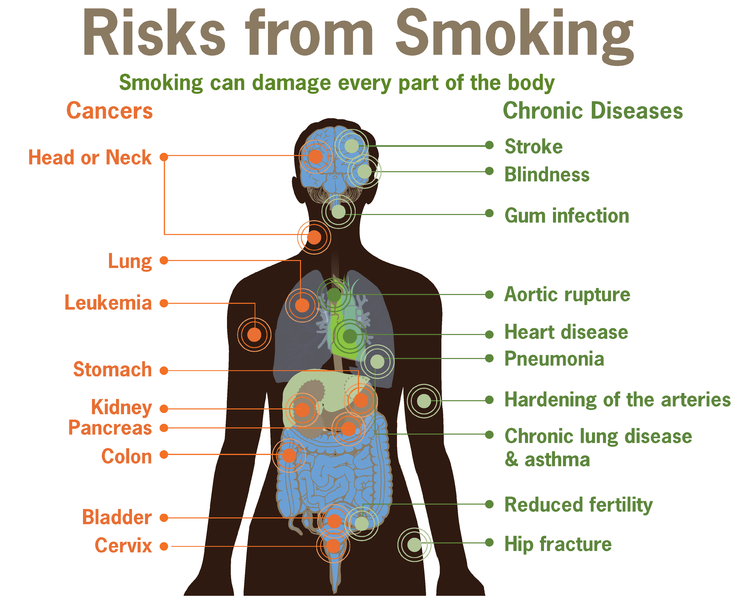 File:Risks form smoking-smoking can damage every part of the body.png