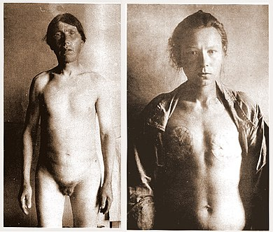 Emasculated Skoptsy male (left) and Skoptsy female with breasts cut off (right) Skoptsy man and woman.jpg