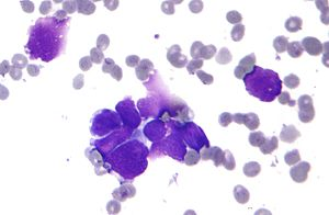 Small cell lung cancer - cytology.jpg