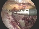 Plik:TEP Operation of Groin Hernia Video 2.ogv
