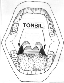 palatine tonsil  Wiktionary