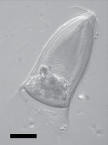 A trichomonák hogyan lehet otthon pinwormot szerezni
