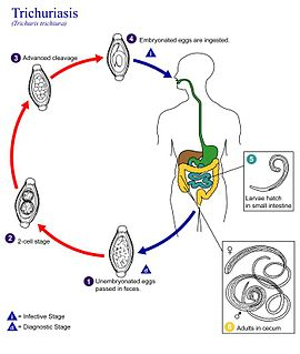 Trichuriasis Infection by the parasitic worm Trichuris trichiura (whipworm)
