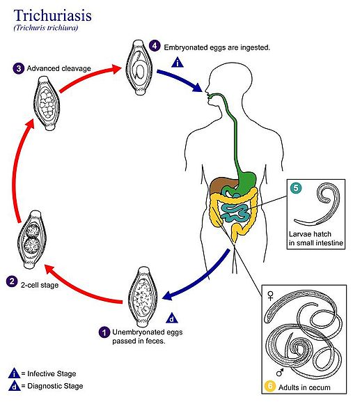 Datei:Trichuriasis lifecycle.jpg
