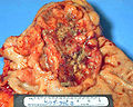 Adenocarcinoma, stomach, gross pathology IMG0037a lores.jpg