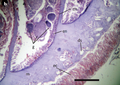 Antipathozoanthus hickmani body wall.png