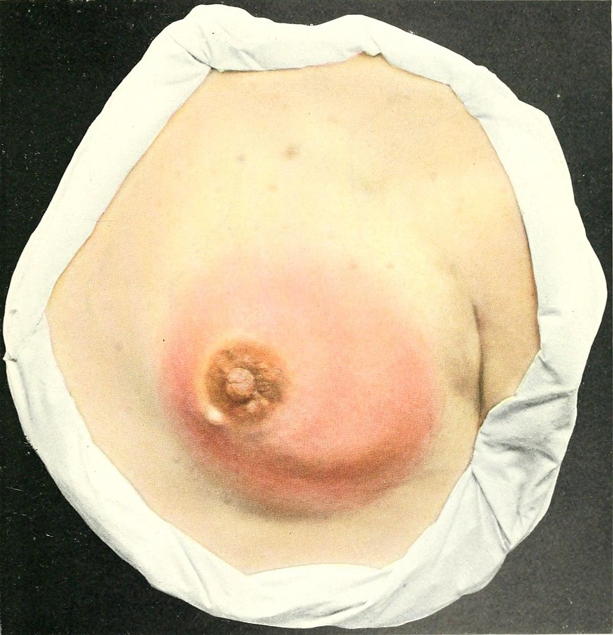 Mastitis - Wikipedia