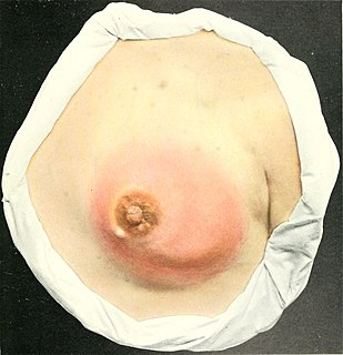 Mastitis Medical condition