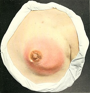Think, breast abscess symptoms the same