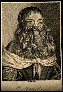 Hirsutism hair growth on a woman, generally causing a full beard to grow (see bearded lady)