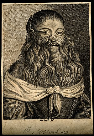 Barbara Vanbeck, a very hairy woman. Stipple engraving by G. Wellcome V0007287.jpg