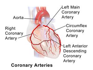 Coronary Artery Ectasia Wikipedia