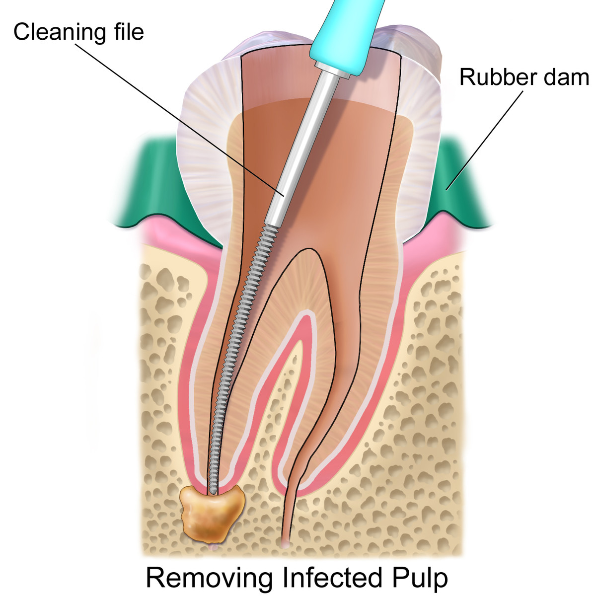 endodontic therapy - wikipedia