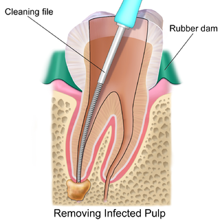 Root canal treatment Dental treatment