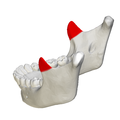Coronoid process of mandible - close up - lateral view3.png