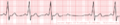 De-Rhythm Mobitz (CardioNetworks ECGpedia).png