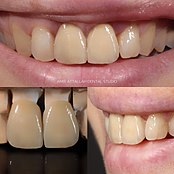 Dental porcelain - Wikipedia