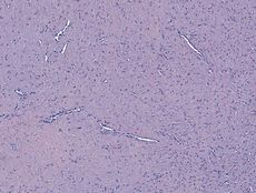Fibroma of tendon sheath.jpg