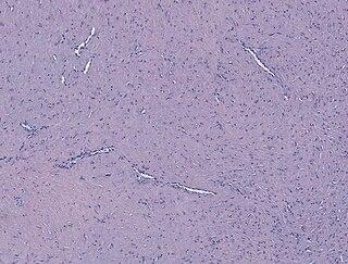 Fibroma of tendon sheath