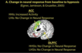 Figure 7 Modulation of neural patterns in the Anterior Cingulate Cortex (ACC) and Dorsolateral Prefrontal Cortex (DLPFC) from baseline to hypnosis (Landry 2017).png