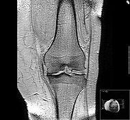 Лечение остеоартрита и артериальной гипертензии у пациентов.