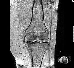definition of osteoarthritis