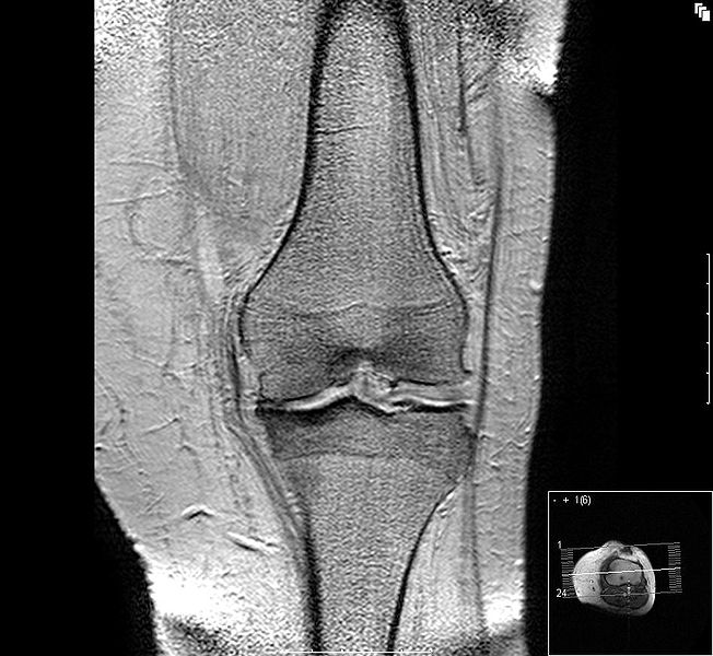 Rehabilitación Artrosis de Rodilla ''Bildbeschreibung:''' Gonarthrose, medialer Aufbrauch des Knorpels <br/> '''Quelle:''' eigene Aufnahme <br/> '''Datum:''' <br/> '''Autor:''' User:Scuba-limp<br/>