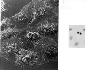 George Otto Gey - First image of HeLa cells taken by Dr. Gey 1951