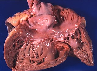 congestive heart failure that involves a failure of the right side of the heart and is characterized by an enlargement of the right ventricle of the heart as a response to increased resistance or high blood pressure in the lungs