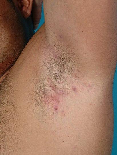 Hidradenitis suppurativa (stage II) in axilla.jpg