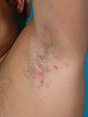 Hidrosadenitis Axilar Download