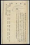 Illustration from Ming Chinese ophthalmology text, Ms copy Wellcome L0039696.jpg