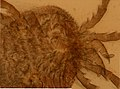 Ixodidae (YPM IZ 098225).jpeg