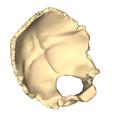 Occipital bone close-up suerperior2.png