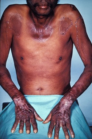 Nutritional neuroscience - Pellagra initially presents as dermatitis