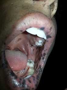 Addison S Disease Dog Incontinent After Percortin