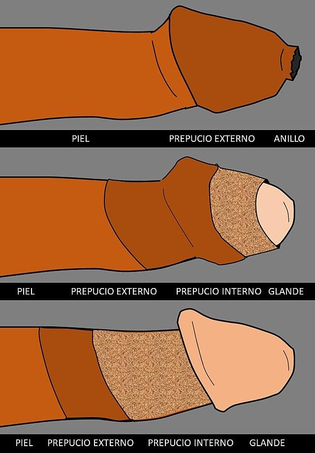 si el glande no queda cubierto por una erección