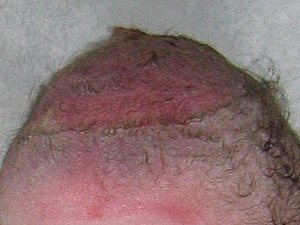 Vacuum Extraction bruised scalp.JPG