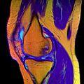 09 Knee MRI T1W TSE R T2W TSE G PDW DR TSE B.jpg