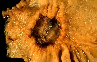 Stomach cancer gastrointestinal system cancer that is located in the stomach