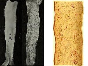 Aterosclerosi dell'aorta addominale.jpg