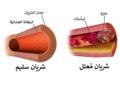 Blausen 0053 Artery NormalvsDiseasedVessel-ar.png