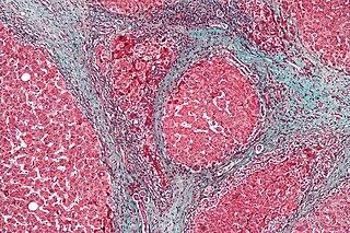 Hepatorenal syndrome Human disease