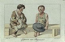Goitre - Wikipedia