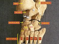 meaning of metatarsus