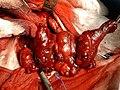 Gozzo cervicomediastinico1.jpg