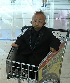 He Pingping worlds shortest man who was able to walk