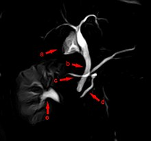 Pancreas divisum - Wikipedia