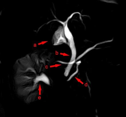 Bauchspeicheldrüse - Wikiwand