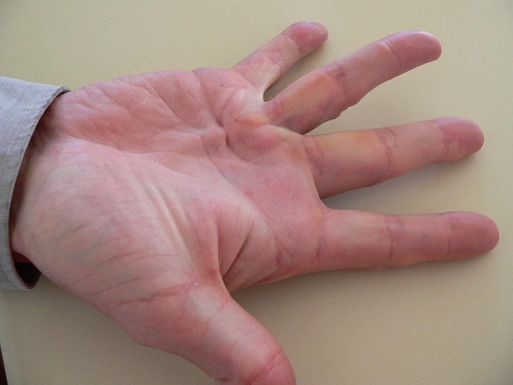 Morbus Dupuytren Fibromatose der Hand